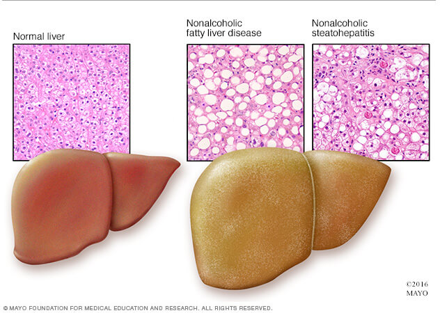 Fatty Liver Disease on the Rise